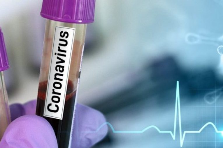 BREAKING: Panic As Nigeria Records First Coronavirus Death