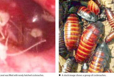 Family Of Cockroaches Found Living Inside Man's Ear